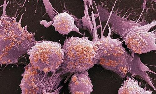 При умеренно дифференцированной аденокарциноме простаты созревание клеток задерживается. Они имеют разные форму и размеры