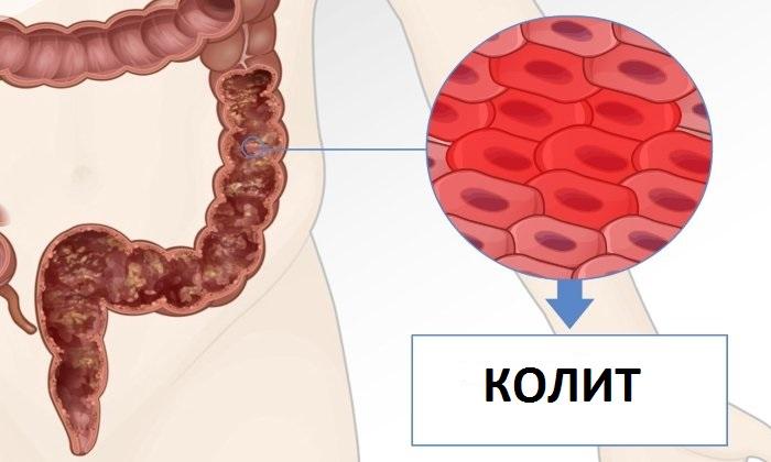 Появляются полипы толстого кишечника при хроническом колите
