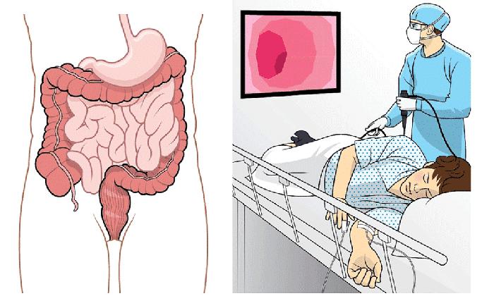 Препарат назначается при предстоящей диагностике методом колоноскопии