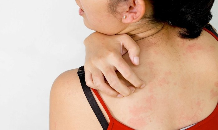 Действие препарата основано на борьбе с воспалением