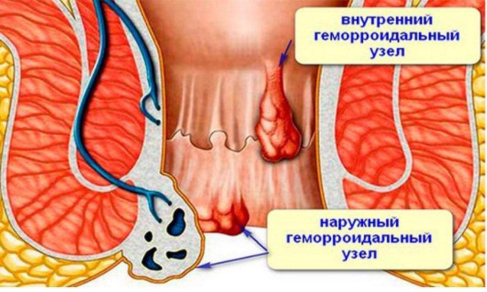 Детралекс лечит воспаление геморроидальных узлов