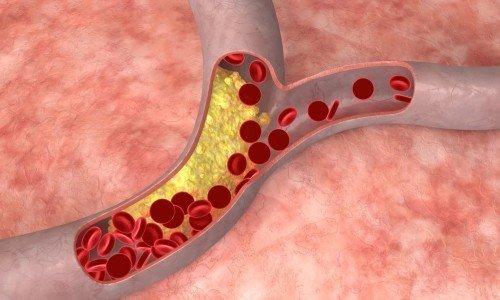 Рассматриваемое лекарство отличается эффективностью при терапии заболеваний и патологий сосудов: тромбоэмболии, эмболии, тромбоза