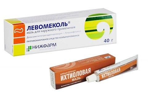 Левомеколь и ихтиоловая мазь - средства для местного применения, которые используют при поражении кожных покровов