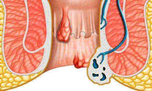 Мазь можно наносить при обострении геморроя на слизистую оболочку ануса