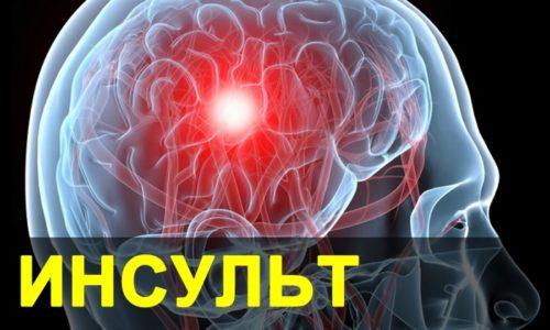 Больным с нестабильным кровообращением (на фоне инсульта или инфаркта) анальгин назначают с осторожностью