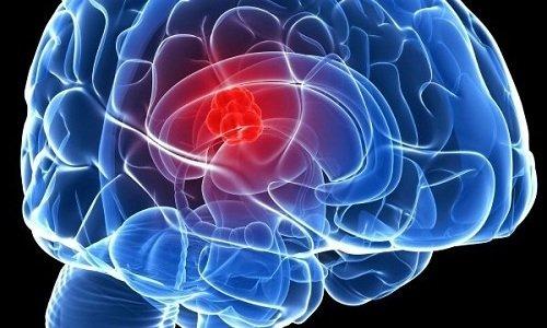 Препарат помогает привести в норму функцию моторных зон коры головного мозга