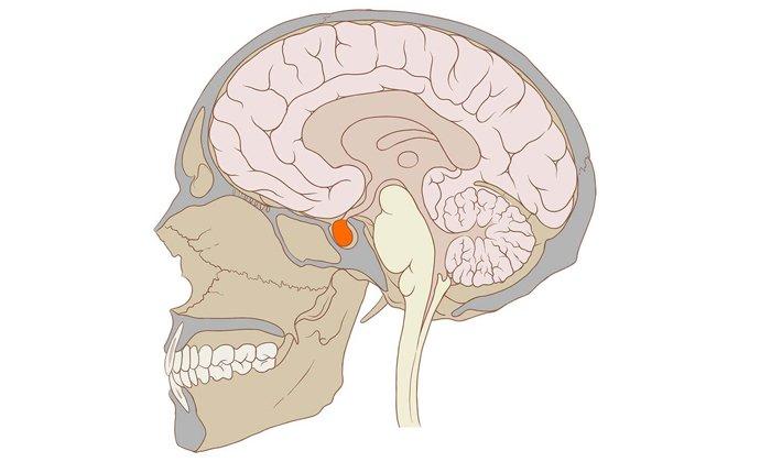 При заболеваниях головного мозга можно использовать Солкосерил