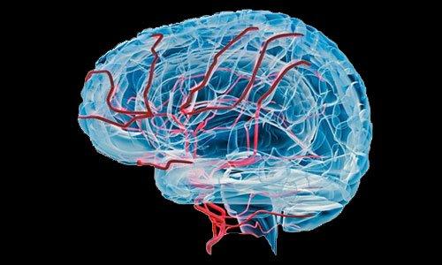 Кавинтон восстанавливает кровообращение головного мозга при сосудистой дистонии и патологии шейного отдела позвоночника