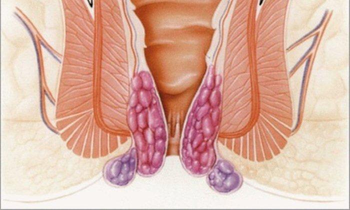 Сульфат цинка позволяет ускорить заживление трещин, а его противовоспалительные свойства способствуют устранению отечности, уменьшают болезненность геморроидальных узлов