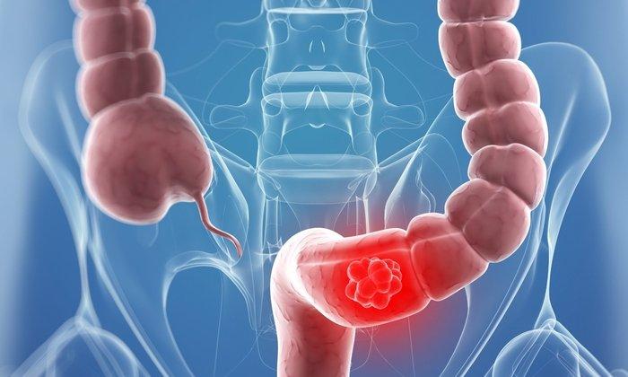 Препарат используется при кишечной непроходимости после хирургического вмешательства