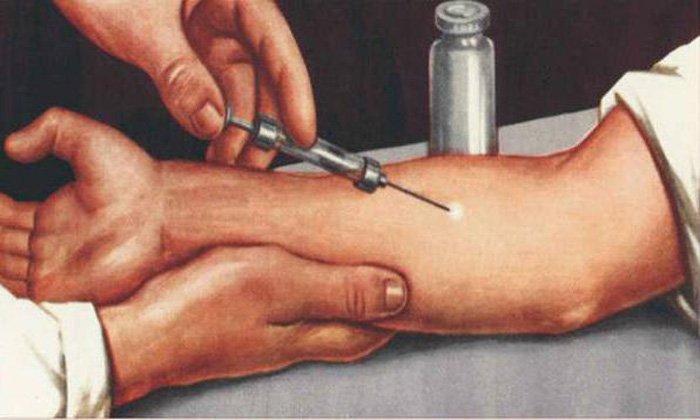 Перед тем как вводить препарат, необходимо сделать кожную пробу на чувствительность к антибиотику и лидокаину