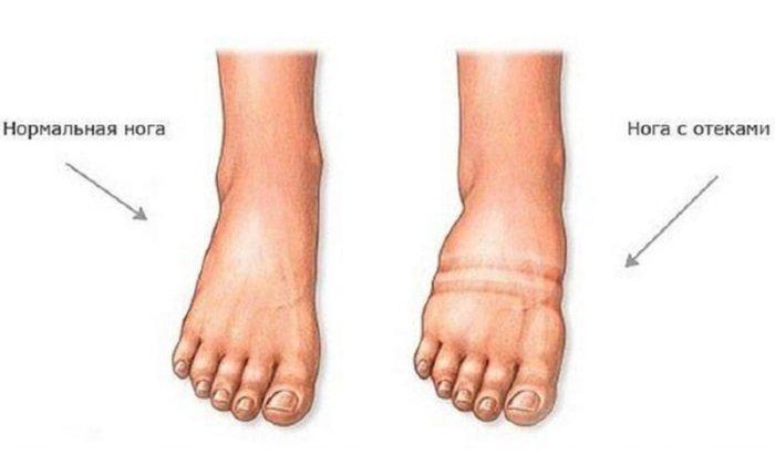 Препарат показан при появлении отеков ног