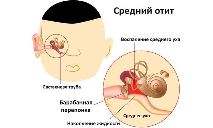 Препараты применяются для лечения среднего отита