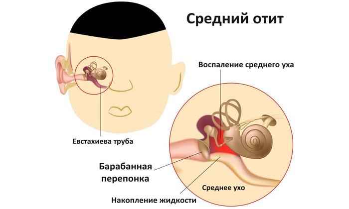 Лекарство применяется при отите