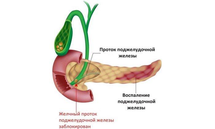 Препарат применяют при недостаточности внешней секреции поджелудочной железы (панкреатит)