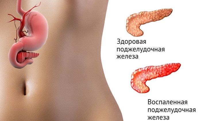 Препарат используется при спазмах органов желудочно-кишечного тракта, вызванных хроническим панкреатитом