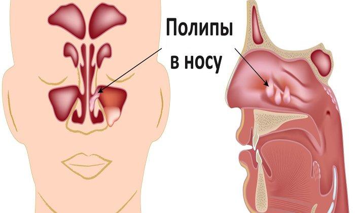 Препарат используют для для обезболивания перед процедурой удаления полипов в носовых ходах