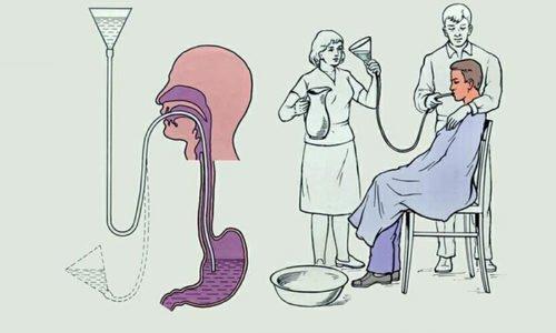 При передозировке делают промывание желудка