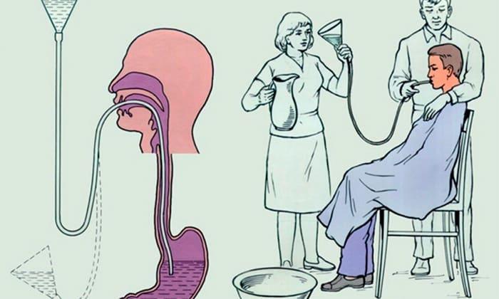 При передозировке в случае необходимости проводят промывание желудка