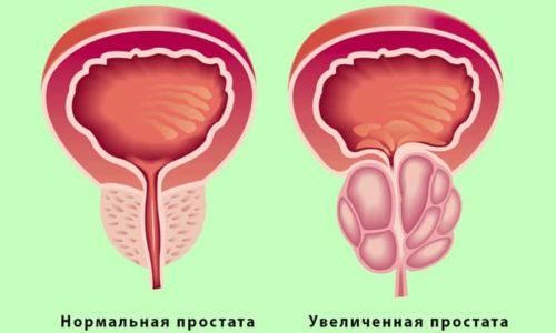При простатите железа увеличивается в размерах, поэтому она своим давлением на прямую кишку ослабляет ректальные связки