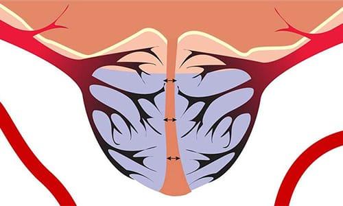 При проведении РПЭ важно не повредить сосудисто-нервные пучки, проходящие через простату по пути к половому члену