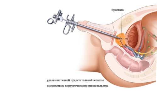 Существуют две минимально инвазивные процедуры, используемые при РПЭ, одна из них с помощью лапароскопического оборудования