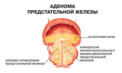 Увеличение правой и левой частей простаты свидетельствует о возможной аденоме