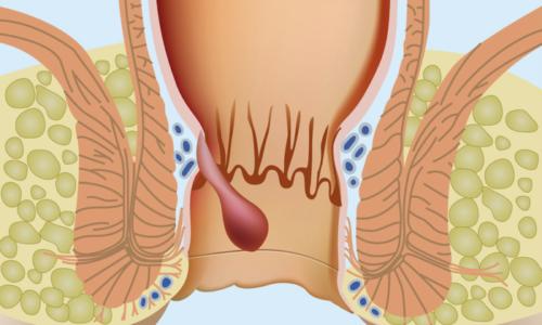 При геморрое лекарство способствует прохождению нормального стула, препятствуя чрезмерному его накоплению