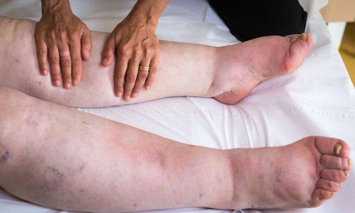 Лекарство назначают при отекании тканей