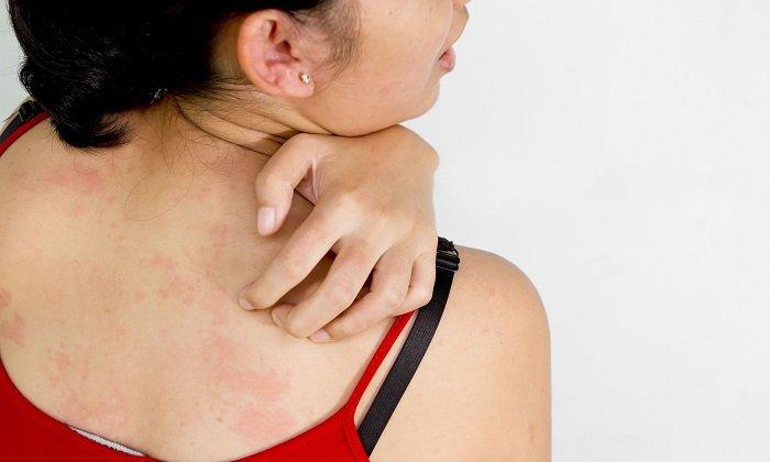 Аллергическая реакция на препарат проявляется кожным зудом, крапивницей