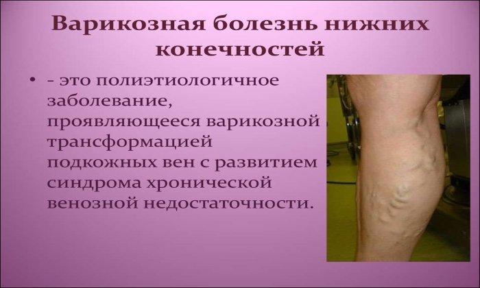 Препарат назначают для лечения варикозной болезни нижних конечностей