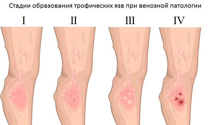 Трофические изменения кожных покровов ног – повод воспользоваться гелем Детралекс