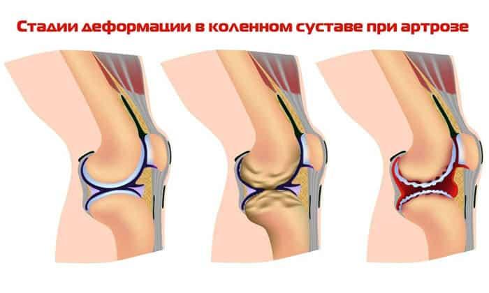 электрофорез назначают и при артрозе различных суставов