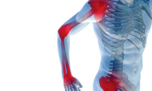 Средство замедляет дегенеративные процессы, уменьшает боль в суставах, восстанавливая их функциональность, и препятствует повреждению хрящевой ткани