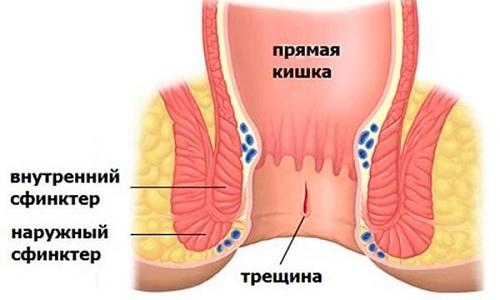 Трещина прямой кишки (анальный надрыв) – это линейный надрыв слизистого и подслизистого слоя ректального канала