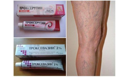 Лекарственные средства Троксерутин и Троксевазин принадлежат к группе ангиопротекторов