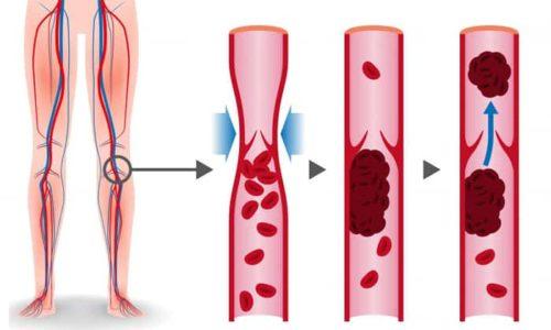 Лиотон предотвращает отек и последующее образование тромбов