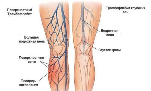 Применение препарата при терапии варикоза нижних конечностей может вызвать развитие тромбофлебита вен