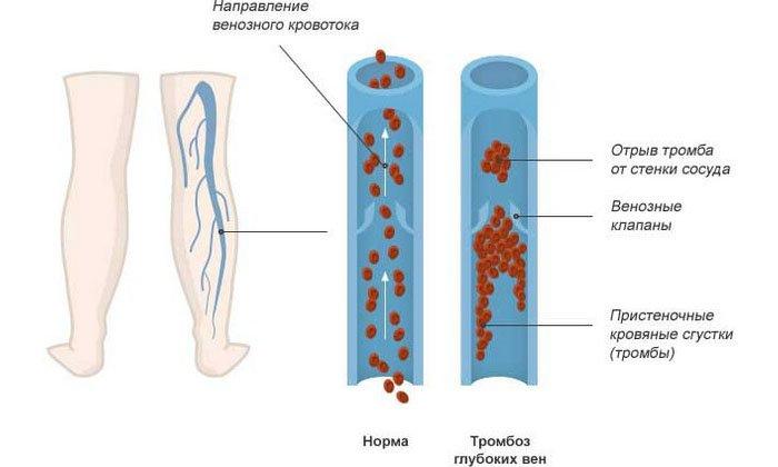 Действующее вещество активирует процесс расщепления жирных кислот, предотвращает повышение свертываемости крови, образование тромбов