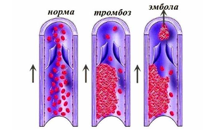 Тромбоэмболическая болезнь также является противопоказанием к назначению препарата