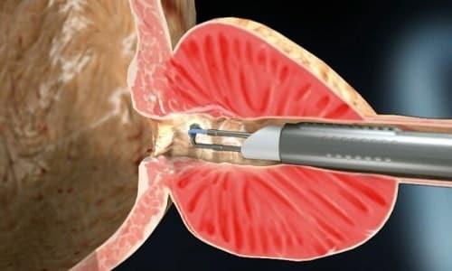 Трансуретральная резекция (ТУР) проводится, как эндоскопическая операция, введением резектоскопа через мочевой канал и его стенку