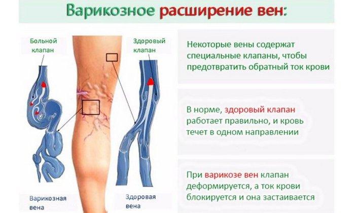 Препарат также показан к применению при варикозном расширении вен на ногах, тромбофлебите