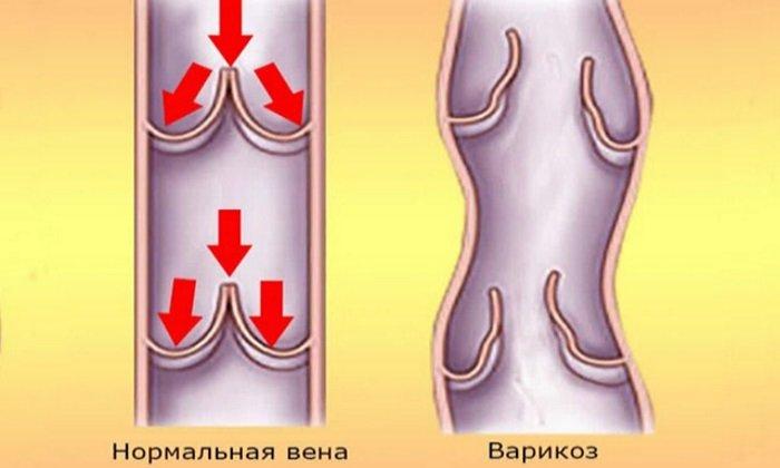 Препарат воздействует на уменьшение растяжимости стенок