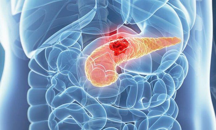 Одновременное употребление препаратов запрещено при воспалениях поджелудочной железы в стадиях обострения