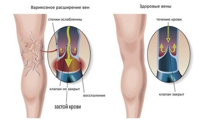 Основной эффект, производимый средством, - снижение резистентности капилляров и устранение венозного застоя