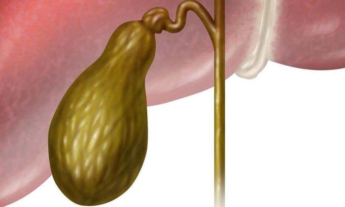 Лекарство можно принимать после удаления желчного пузыря