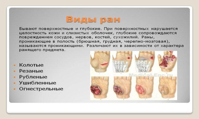 Препарат применяется при лечении ран различной природы и тяжести, в т. ч. и послеоперационных