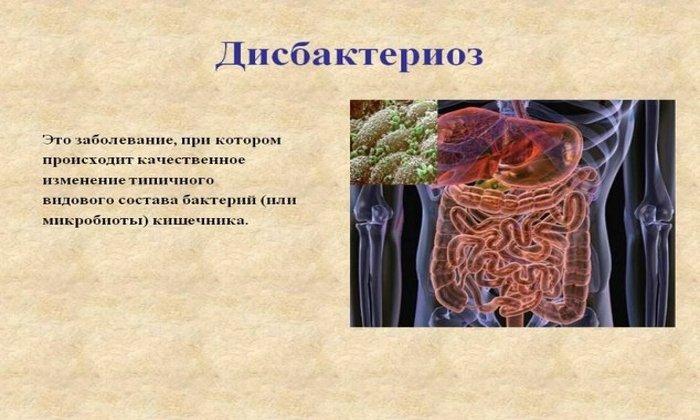 Бифидобактерин назначают при дисбактериозе кишечника различного происхождения