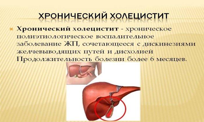 Аллохол показан в составе комплексной терапии при лечении хронического холецистита