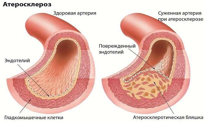 Троксевазин используют при атеросклерозе